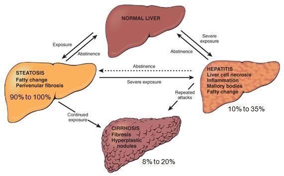 Liver disease jpg