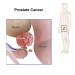 signs-of-prostate-cancer