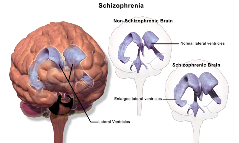 Schizophrenia isn't a condition to be taken lightly. On the contrary ...