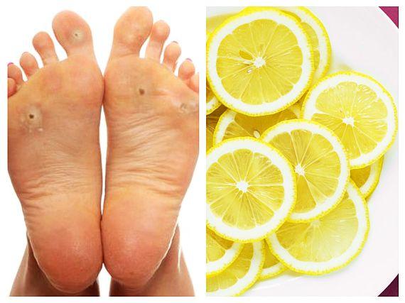 Natural Remedies For Corns And Calluses
